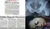 Tidur Tidak Pakai CD, Alat Vital Wanita Ini Dimasuki Tikus